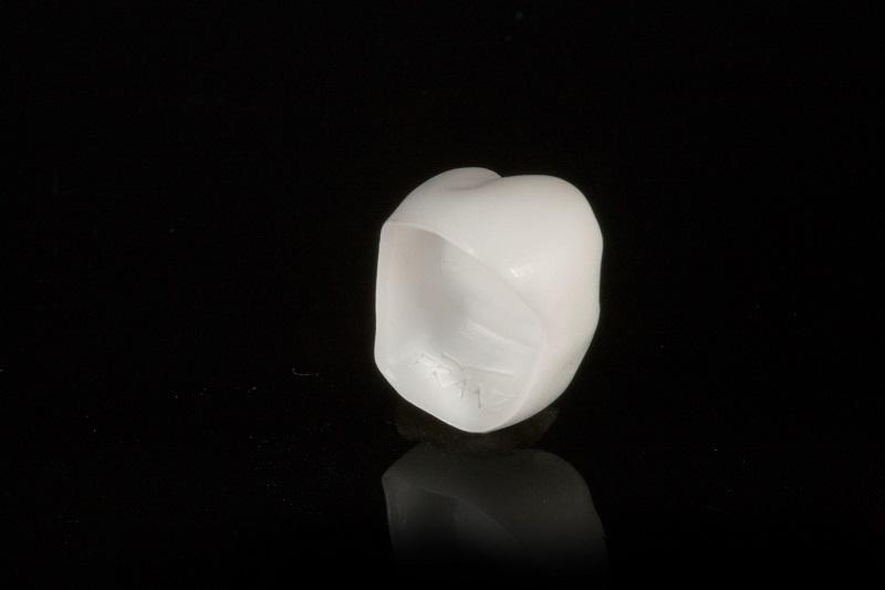 法藍瓷3D列印技術應用於全瓷牙冠,可於牙冠內面刻畫logo、生產序號、個資ID,並可提高牙冠黏合時之穩固度。
