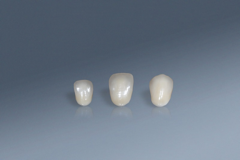 高擬真3D列印法藍瓷氧化鋯成型牙冠前齒